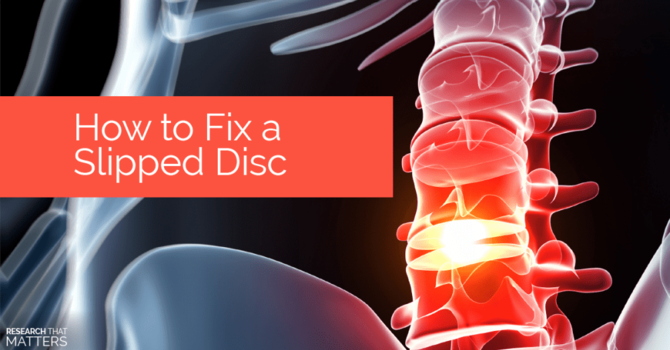 How Bad is a Herniated Disc? image