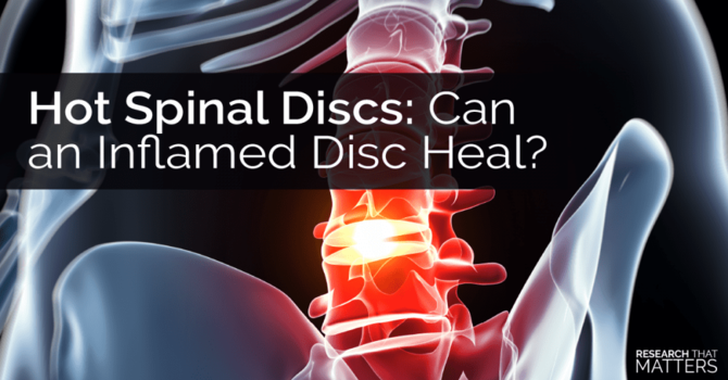 Disc Injury and the Role of Inflammation image